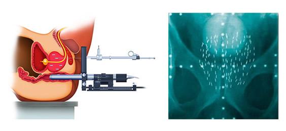 前立腺がんに対する密封小線源療法