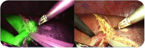 ICG蛍光法併用腹腔鏡下肝切除術
