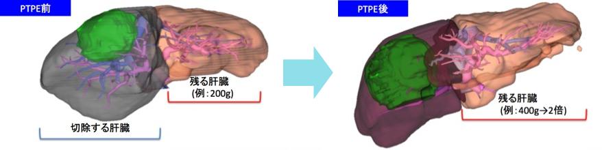 経皮経肝門脈塞栓術(PTPE)