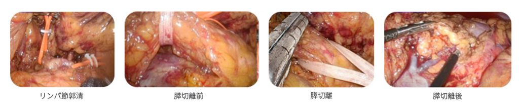 腹腔鏡下膵切除術